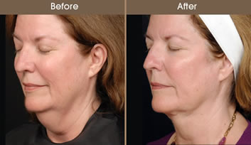 Is it Better to Do Laser or Have a Facelift Done?