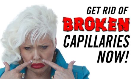 How to Get Rid of Broken Capillaries on Your Face