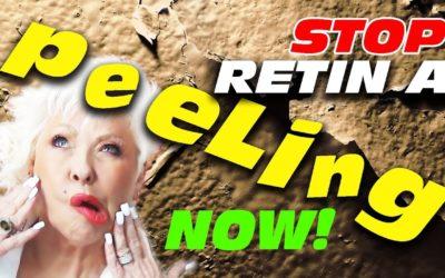STOP RETIN-A PEELING FAST!